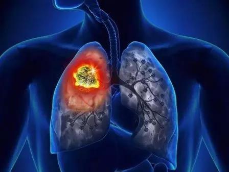 如果肺ct显示肺的情况非常好,肺的结构没有改变,也没有肺结节的情况
